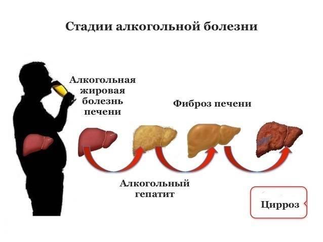 Симптомы, лечение и продолжительность жизни при алкогольном гепатите