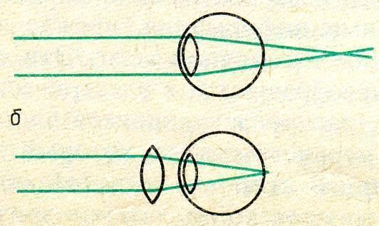 Какие линзы нужны при дальнозоркости: собирающие или рассеивающие? линзы для зрения