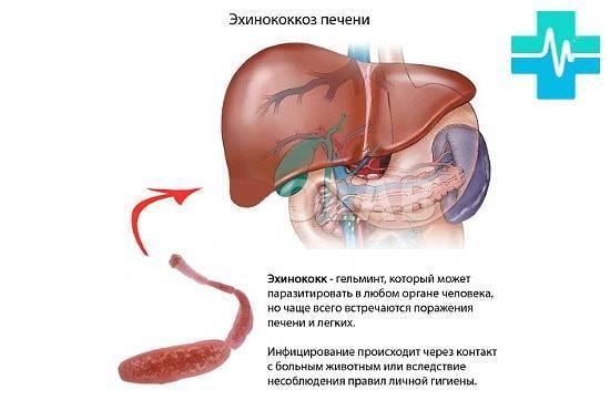 Эхинококковая киста печени, признаки, как лечить и нужно-ли делать операцию