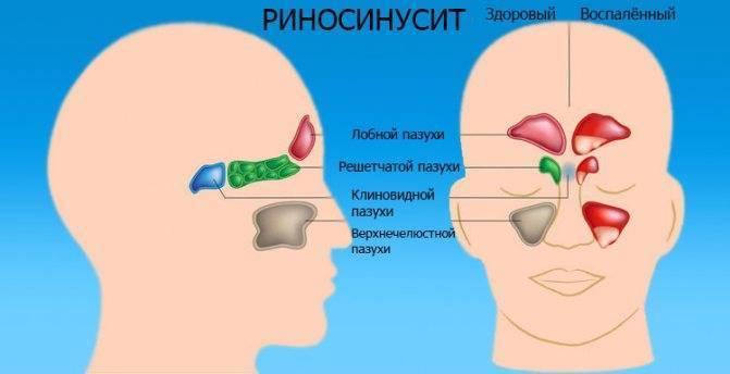 Фронтит вызывает боли в лобных пазухах. а разве бывает гайморит без насморка: от диагностики до лечения