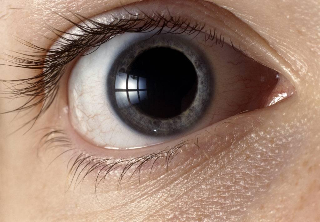 Суженные зрачки. причины и заболевания, при которых происходит сужение зрачков.