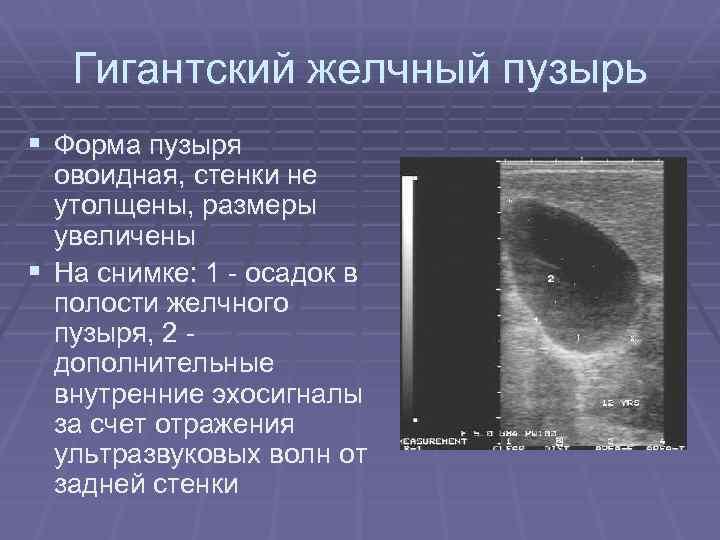 Желчный пузырь: размеры в норме у взрослых и детейдиагностика и лечение печени и желчного пузыря