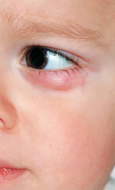 комаровский ячмень на глазу