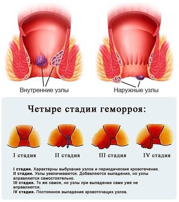Лечение геморроя на 2 стадии