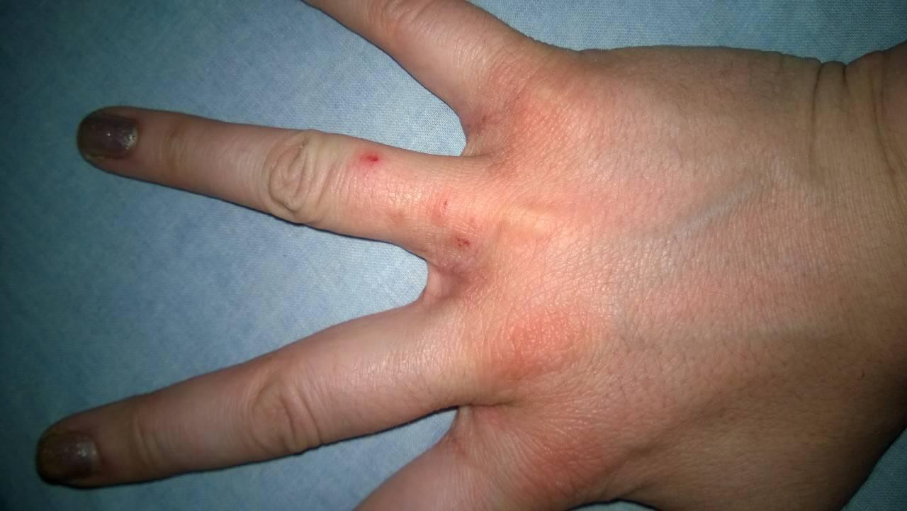 кожный дерматит контактный
