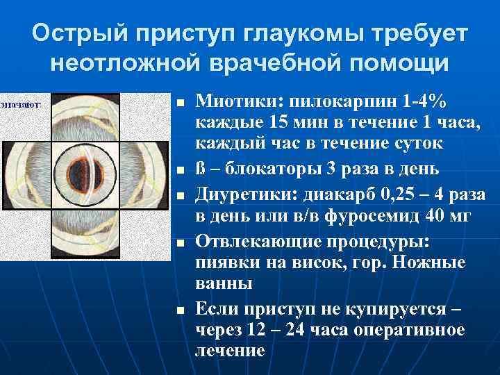 первая помощь при остром приступе глаукомы