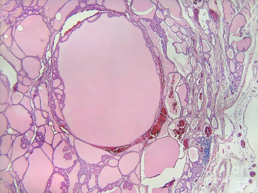 Коллоидный зоб щитовидной железы, коллоидные узлы щитовидной железы – что это такое?