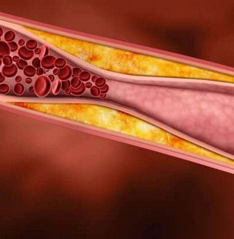Надо ли вам снижать холестерин
