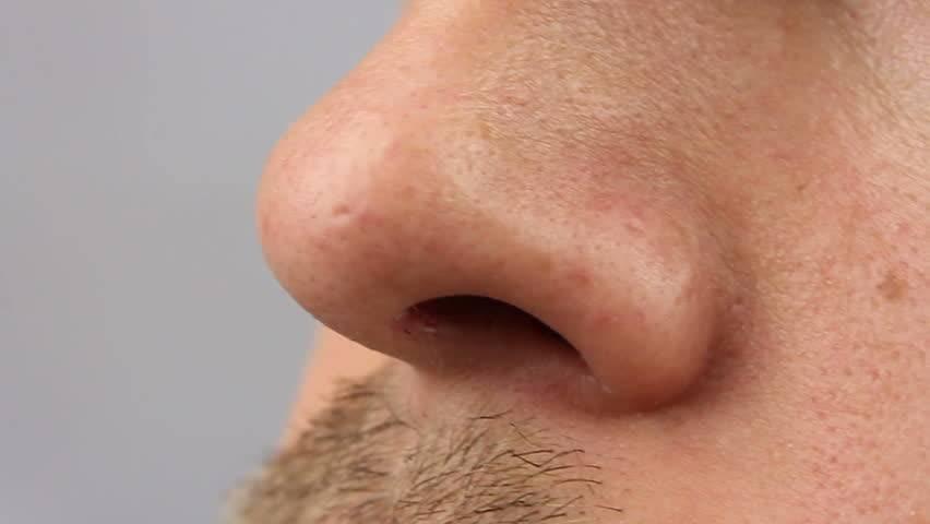 Симптомы рака носа, его причины и лечение