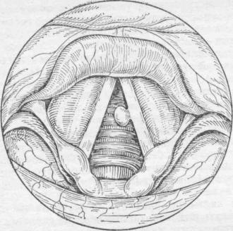 Ларингит — большая медицинская энциклопедия