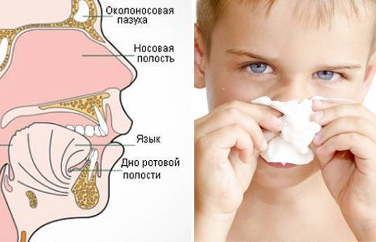 Откуда берутся сопли в носу у человека — какова их роль в организме?