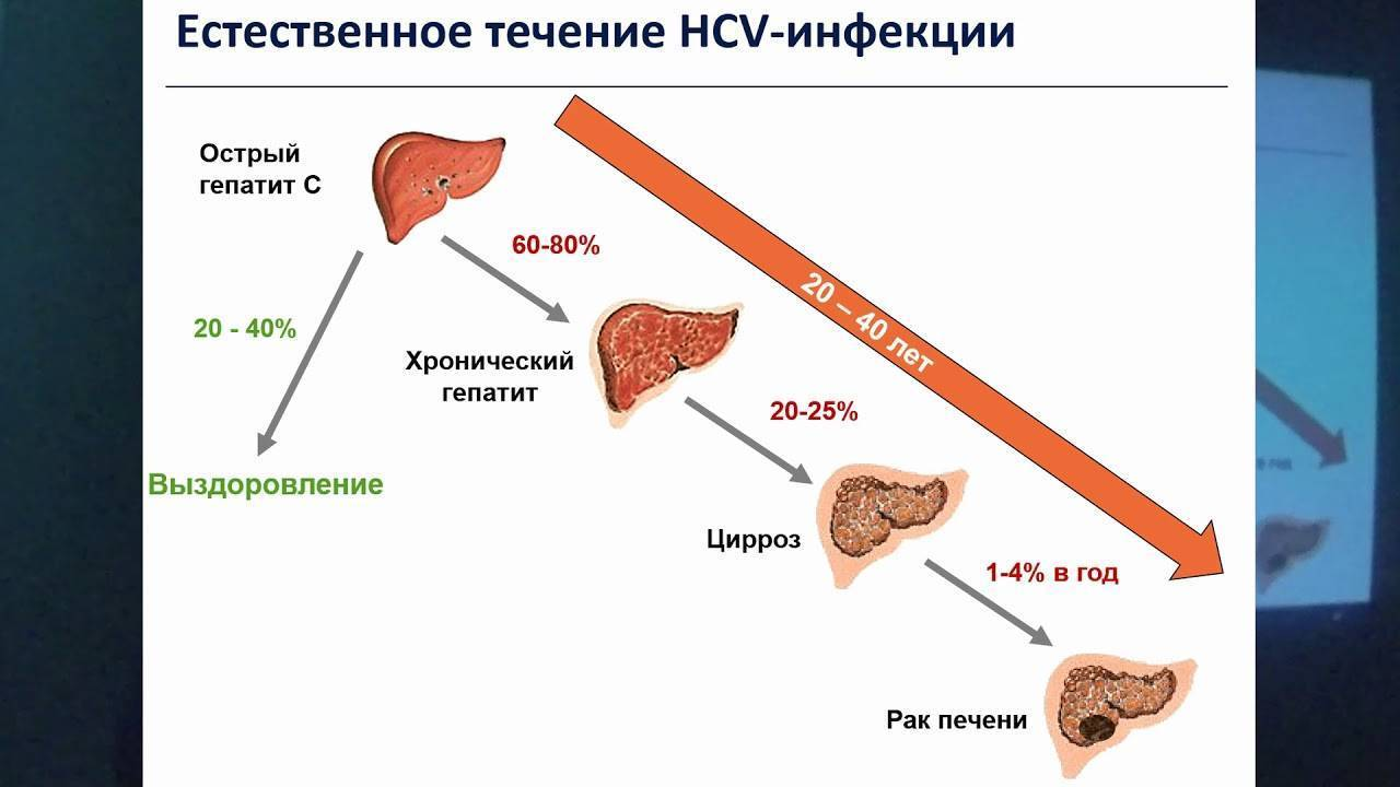 проявление гепатита с