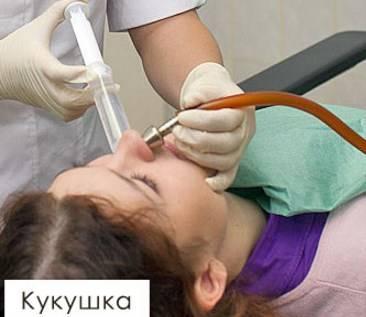 Промывание носа и носоглотки методом кукушки в домашних условиях и в поликлинике