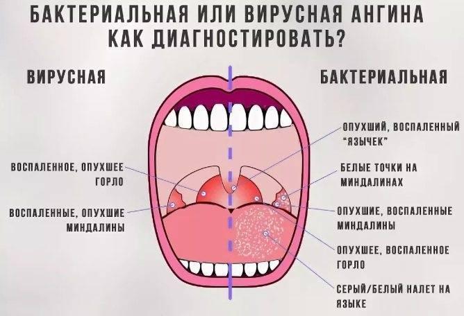 сколько держится температура при ангине