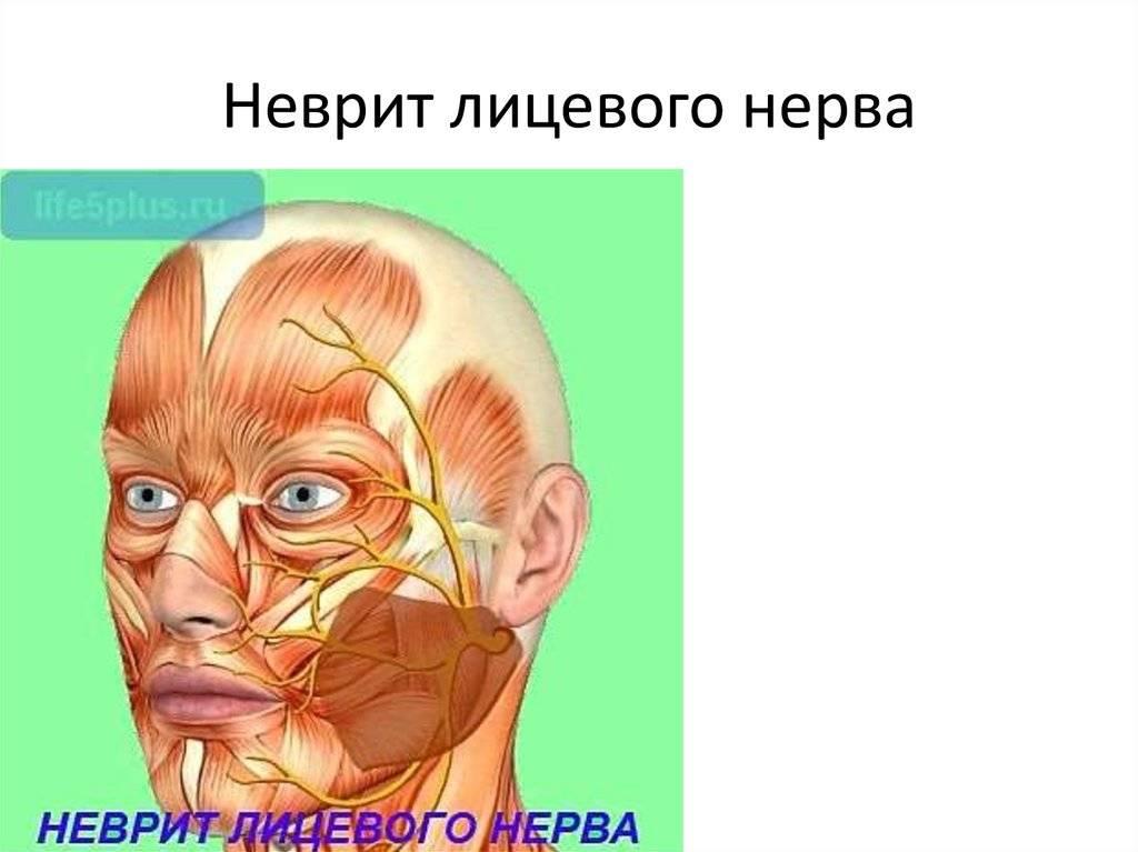 неврит лицевого нерва последствия