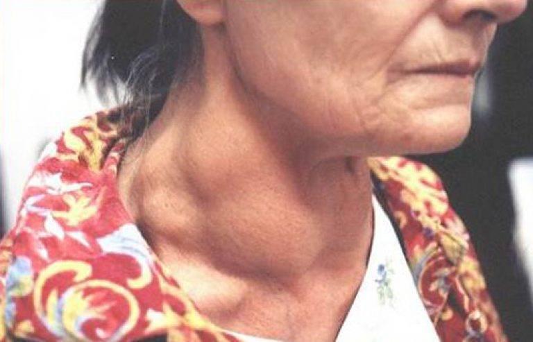 рак щитовидной железы симптомы у женщин лечение