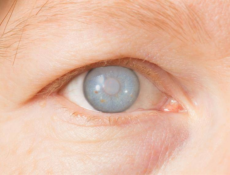 Что противопоказано при глаукоме, а что можно