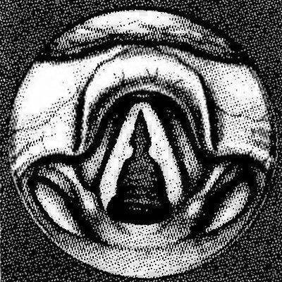 Узелковый ларингит