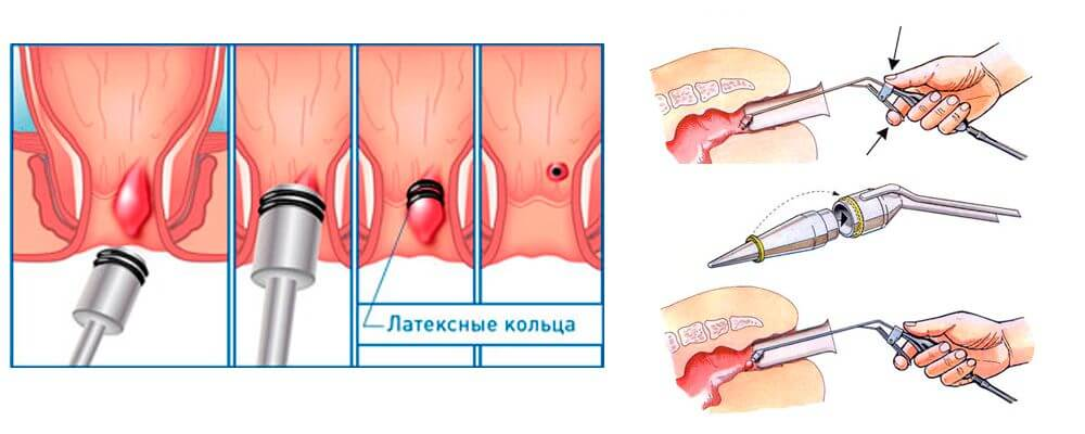 Лечение геморроя (геморроидальной болезни)