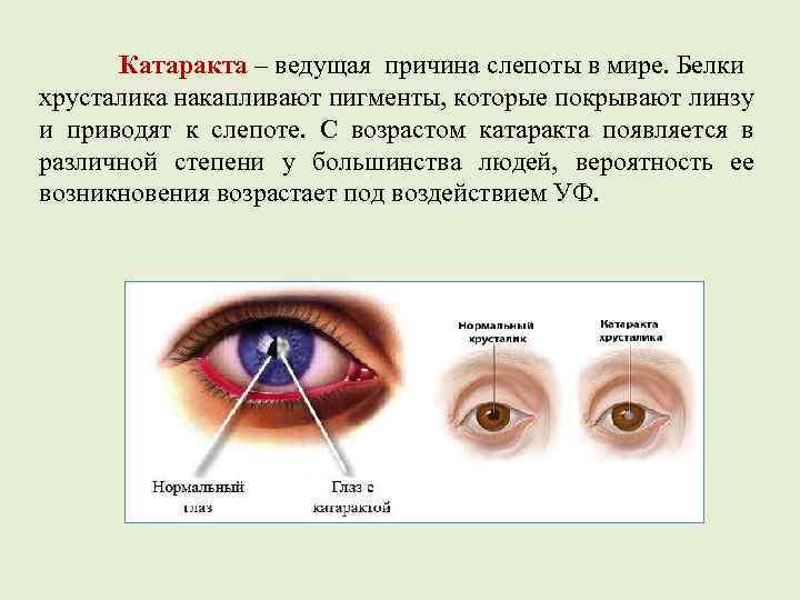 Слепота: причины, симптомы и лечение