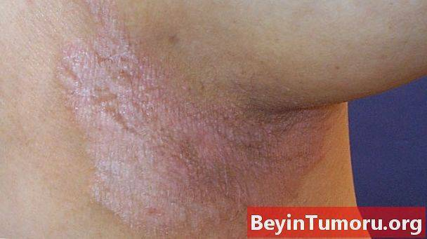 Псориаз в паху: фото, причины, лечение