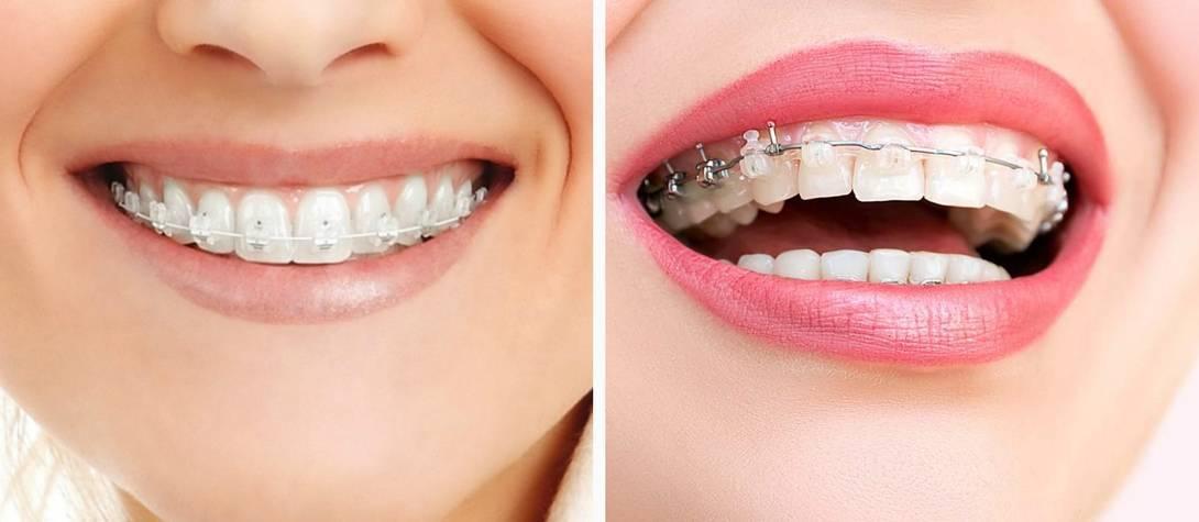 Выравнивание зубов: основные виды