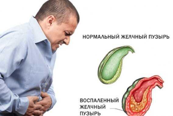 боли в желчном пузыре симптомы лечение