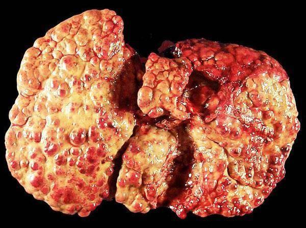 Смерть от цирроза печени