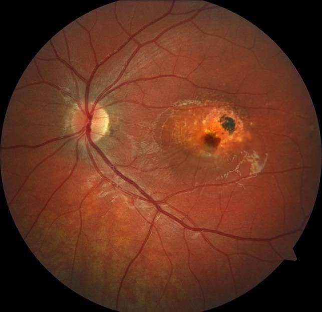 Возрастная макулодистрофия сетчатки глаза (вмд)
