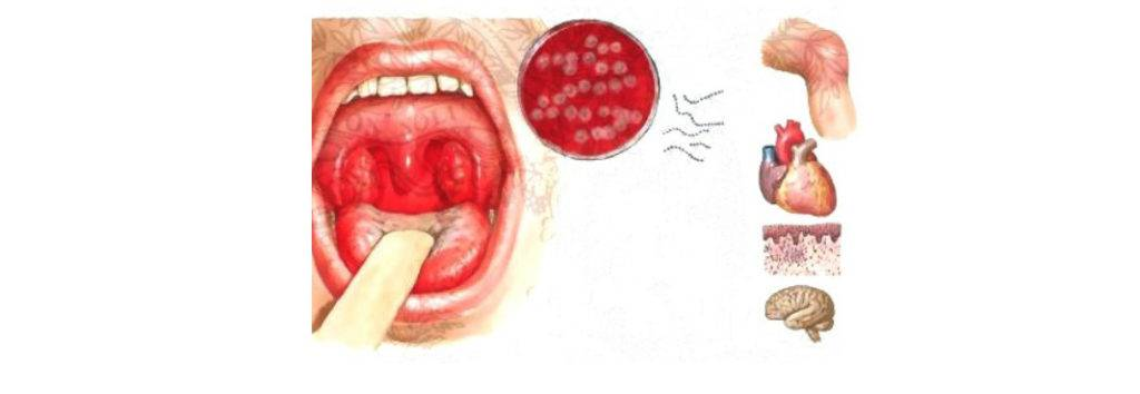 Симптомы молочницы (кандидоза) горла, методы лечения и профилактика