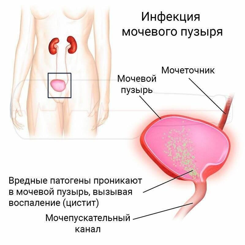 Цистит. современная диагностика, эффективное лечение и профилактика заболевания :: polismed.com