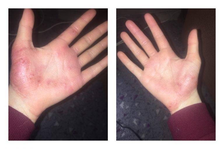 Аллергический и атопический дерматит на руках у детей
