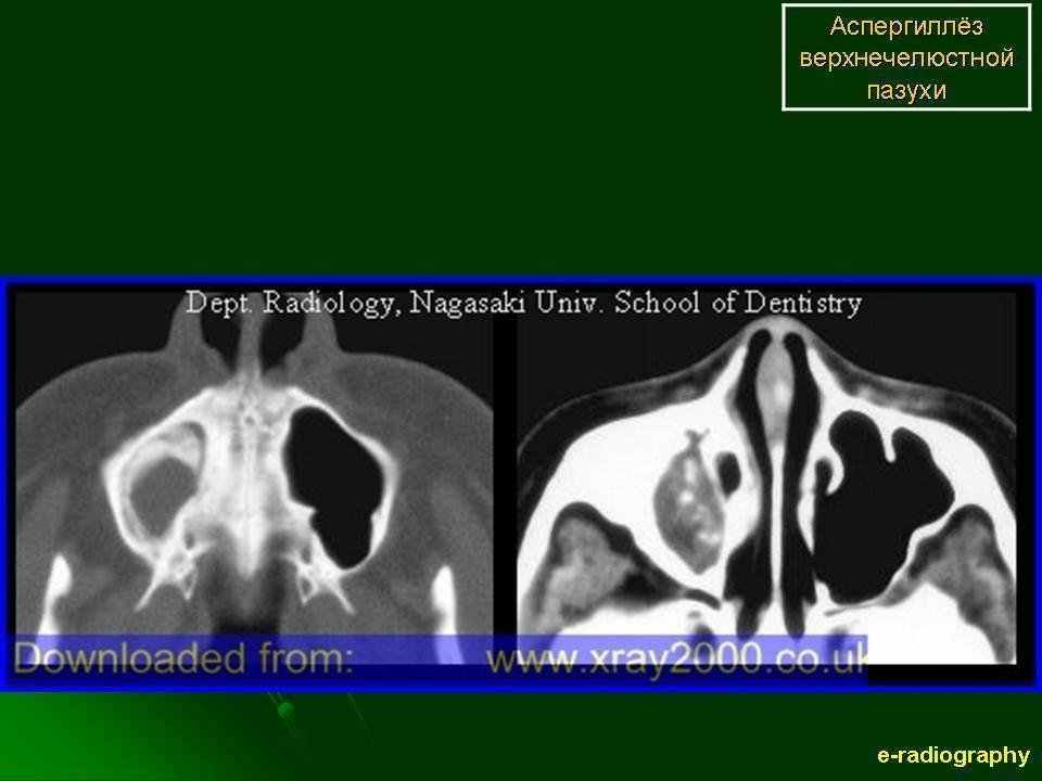 Грибковый гайморит симптомы и лечение