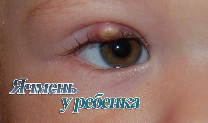 Ячмень на глазу у ребёнка: что делать, чем лечить, советы доктора комаровского. почему у ребенка постоянно выскакивает ячмень на глазу