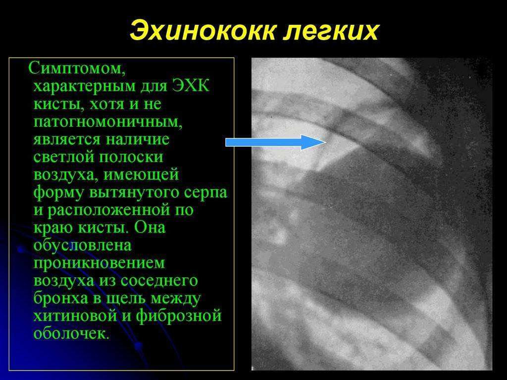 Симптомы эхинококкоза легких и его лечение. эхинококкоз легких: причины, симптомы и лечение