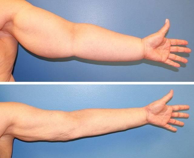 лимфостаз после мастэктомии лечение