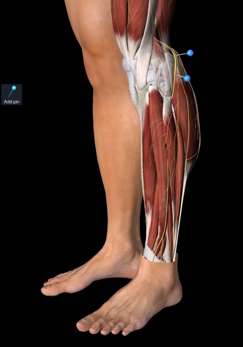 невропатия малоберцового нерва симптомы