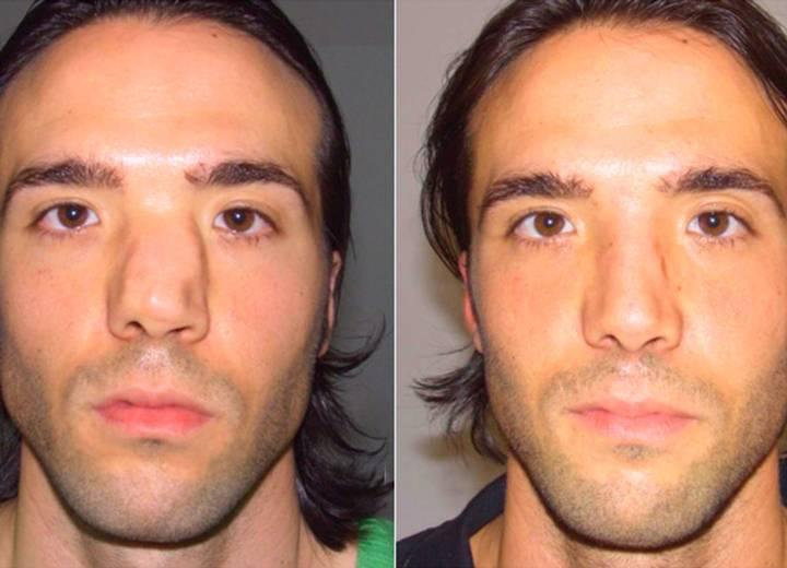 перелом носа со смещением операция