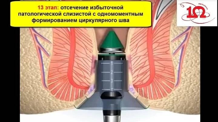 Операция геморроидэктомия — удаление геморроя