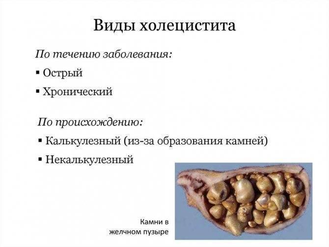 Как лечить холецистит домадиетой и народными средствами