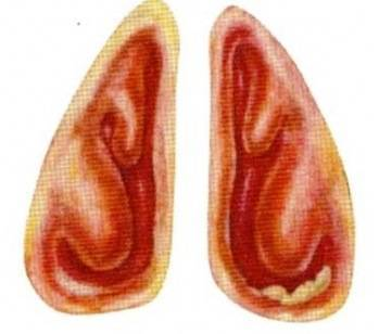 Причины появления атрофического ринита и методы его лечения