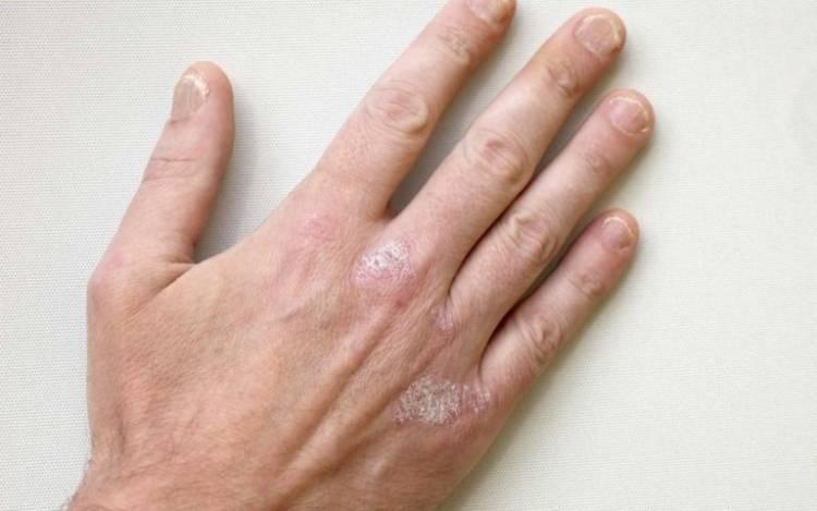 Какими бывают осложнения при псориазе?