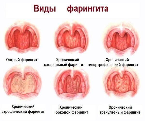 Болезни горла.ларингит.