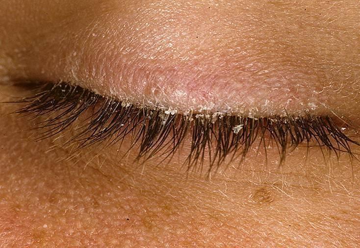 Улучшенный вариант лечения себорейного псориаза в волосистой части головы