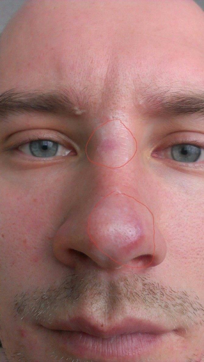 Прыщик в носу очень болит: что делать, как лечить?