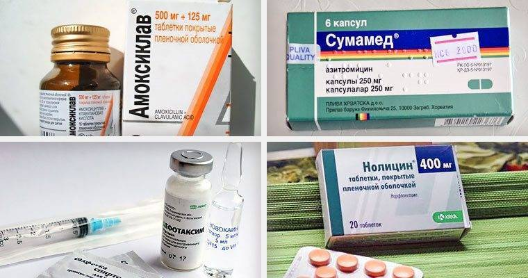 Лечение цистита без антибиотиков