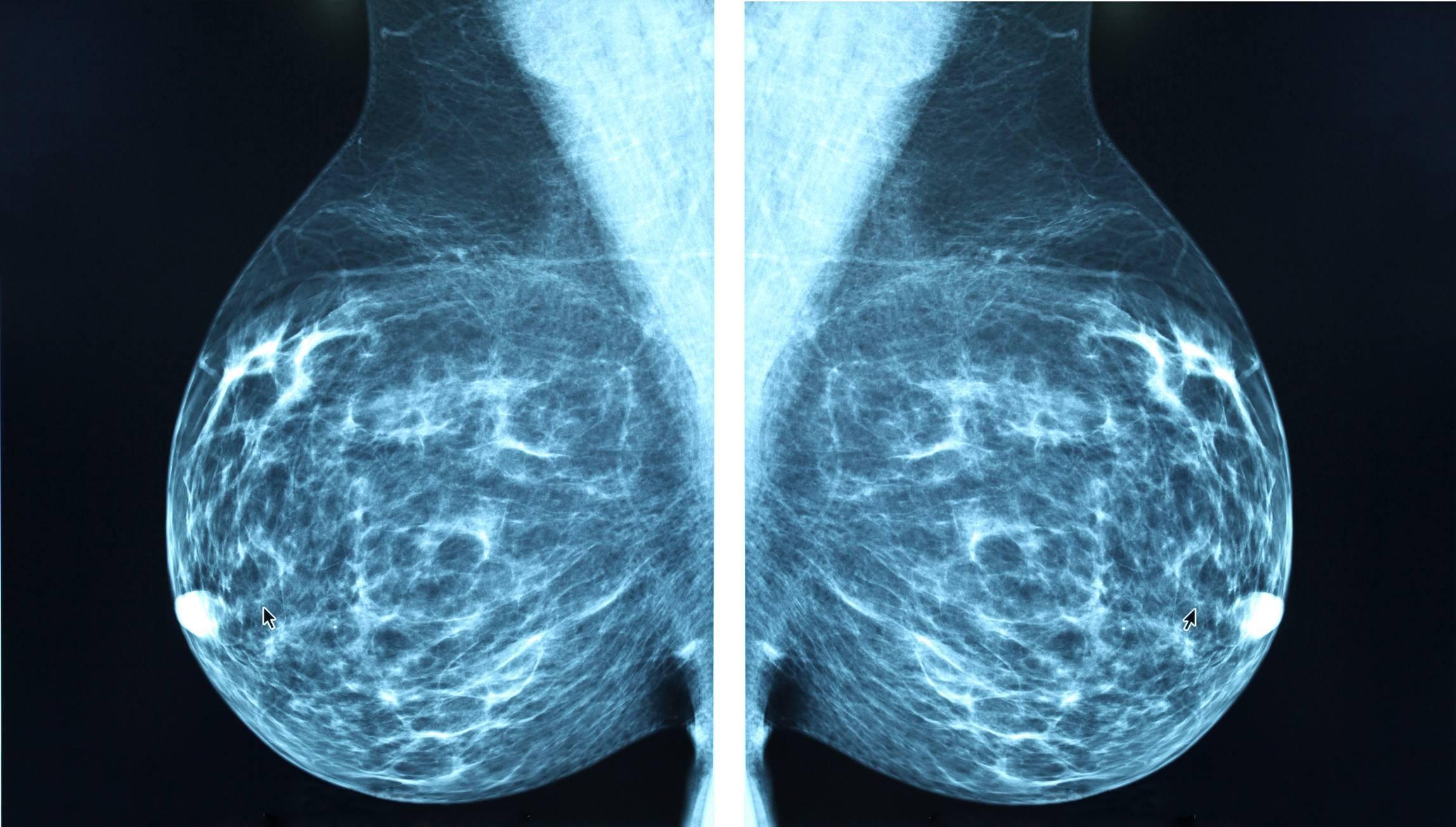 маммография со скольки лет делать