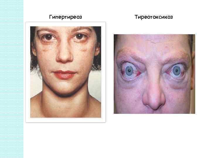 Симптомы и лечение гипертиреоза у женщин