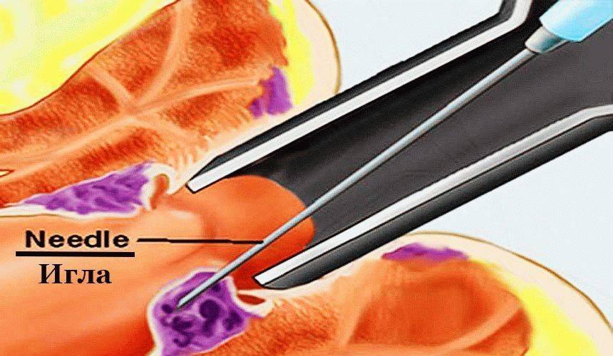склеротерапия лечение геморроя