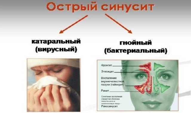 У ребенка слезится один глаз и насморк комаровский